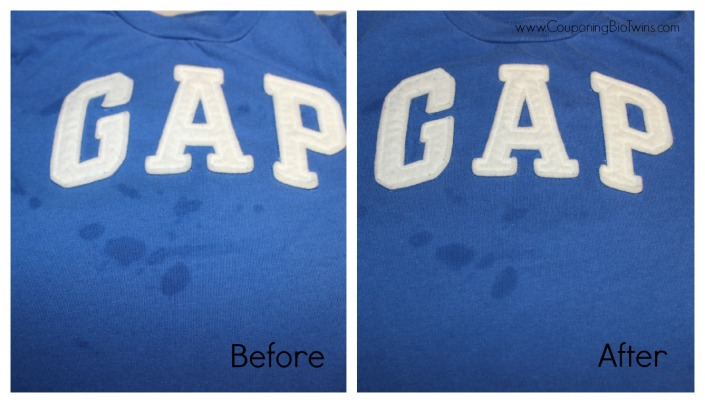 before and after gap